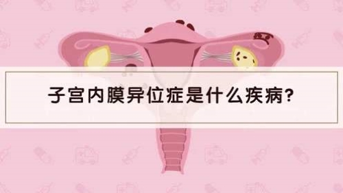 子宫内膜异位症是什么