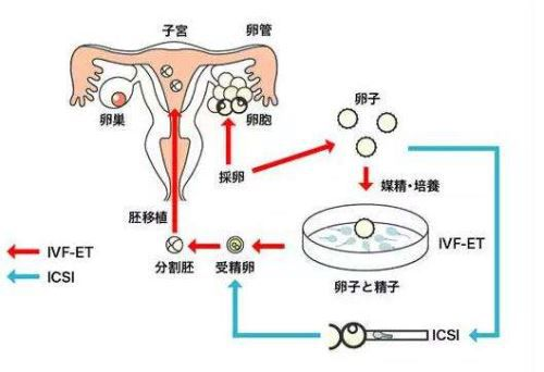 体外授精流程.jpg