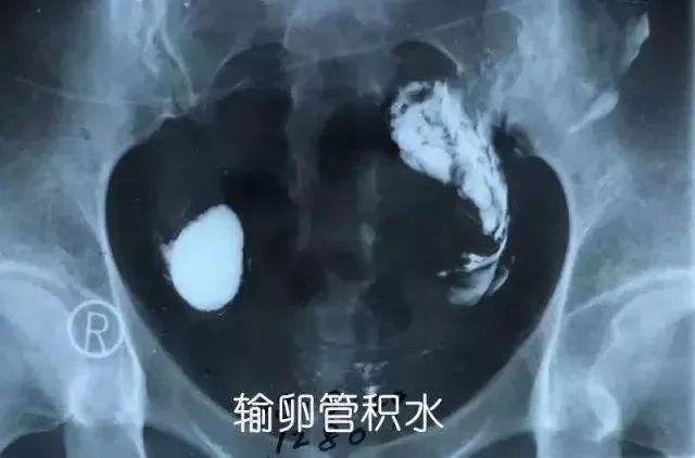 输卵管积水