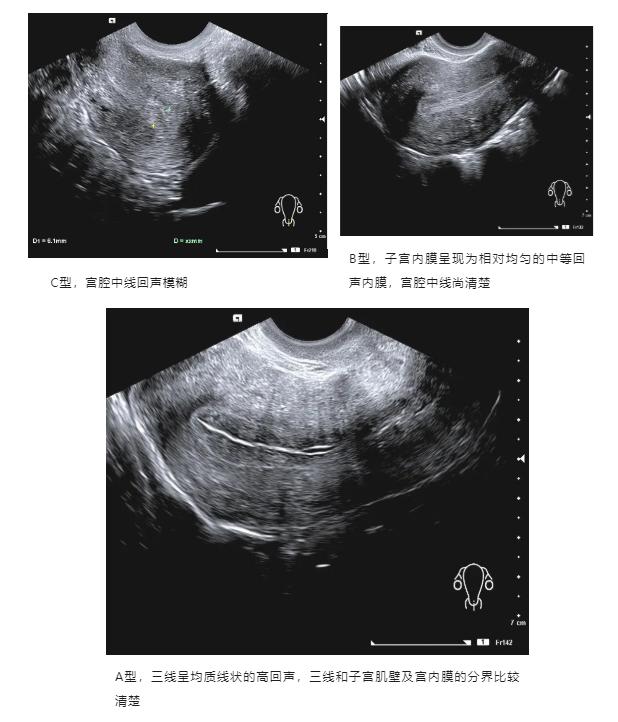 子宫内膜三线征