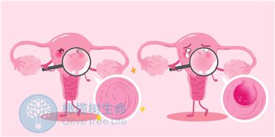 子宫息肉会影响试管婴儿的成功率吗?