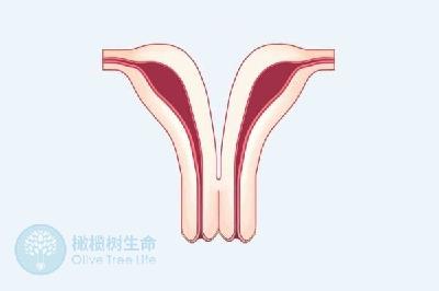因子宫纵膈导致流产的女性,做试管婴儿可以成功生育吗